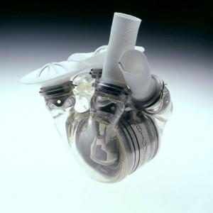 Corazón de Reemplazo implantable de AbioCor producido por la empresa AbioMed de Danvers, Massachusetts